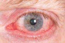 Gereiztes Auge bei Bindehautentzündung.